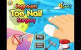 Операция на ногте